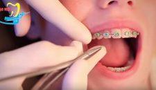 Thời gian đeo niềng răng mất bao lâu thì xong?