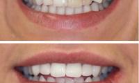 Một số hình ảnh bọc răng sứ thẩm mỹ tại Nha Khoa Lạc Việt