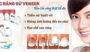 Đánh giá 2 phương pháp bọc răng sứ và mặt dán sứ Veneer