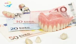 Giá làm răng veneer sứ hiện nay là bao nhiêu