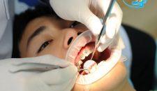 Niềng răng móm ở đâu hiệu quả cao, an toàn và nhanh chóng?