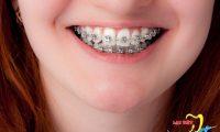 Niềng răng hô giá rẻ, hiệu quả cao nhất tại Hà Nội