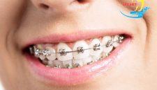 Giá niềng răng hô có đắt không và phương pháp nào tiết kiệm nhất?