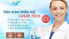Nha khoa trám răng thẩm mỹ ở Hà Nội uy tín và an toàn bậc nhất hiện nay