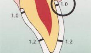 Kỹ thuật mài cùi răng cho răng sứ không kim loại