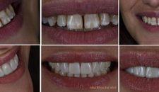 Một số hình ảnh bệnh nhân bọc răng sứ Veneer tại nha khoa Lạc Việt