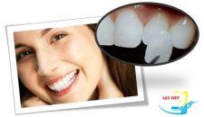 Mặt dán sứ Veneer và bọc răng sứ thẩm mỹ cái nào tốt hơn?