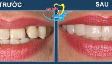 Tìm hiểu Bọc răng sứ veneer ở đâu tốt tại Hà Nội