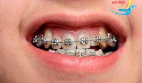 Niềng răng hô hết bao nhiêu tiền – Nha khoa uy tín, giá rẻ!