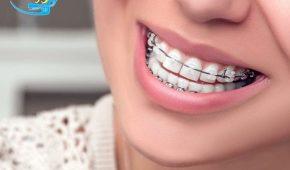 Chuyên gia nha khoa tư vấn: Bị móm có niềng răng được không?