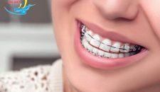 Niềng răng móm không cần phẫu thuật – Hiệu quả như thế nào?