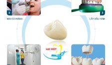 Tìm hiểu về quy trình làm răng sứ Cercon theo tiêu chuẩn Châu Âu