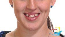 So sánh niềng răng với bọc răng sứ thẩm mỹ cho răng khấp khểnh