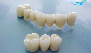 Răng sứ Cercon và những điều cần biết- Xem ngay