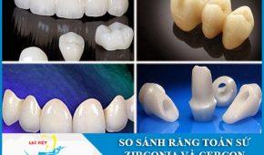 Cùng phân tích răng sứ Zirconia và Cercon loại nào tốt hơn