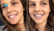 Thẩm mỹ răng hô với công nghệ hiện đại – nhanh chóng, an toàn!