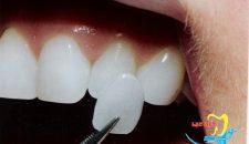 Thẩm mỹ răng thưa bằng mặt dán sứ Veneer