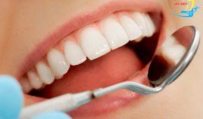 Răng đen và các giải pháp khắc phục