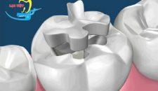 Liệu bạn đã biết trám răng thẩm mỹ là gì hay chưa