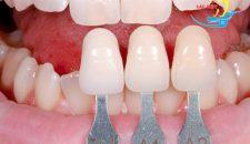 Những ưu điểm khi bọc răng sứ veneer có thể bạn chưa biết